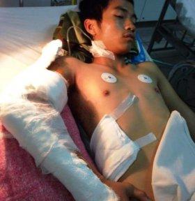 Một thanh niên bị chém rơi cánh tay
