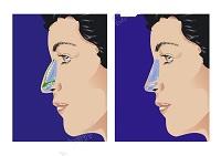 Sử dụng hình ảnh phẫu thuật thẩm mỹ của người khác để quảng cáo
